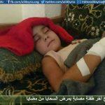 إخراج آخر طفلةٍ مصابةٍ بمرض السحايا من مضايا
